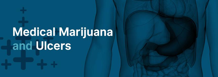 marijuana for ulcers