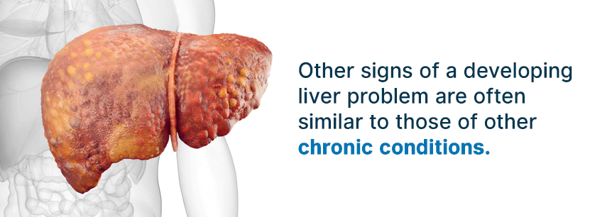 symptoms of liver disease